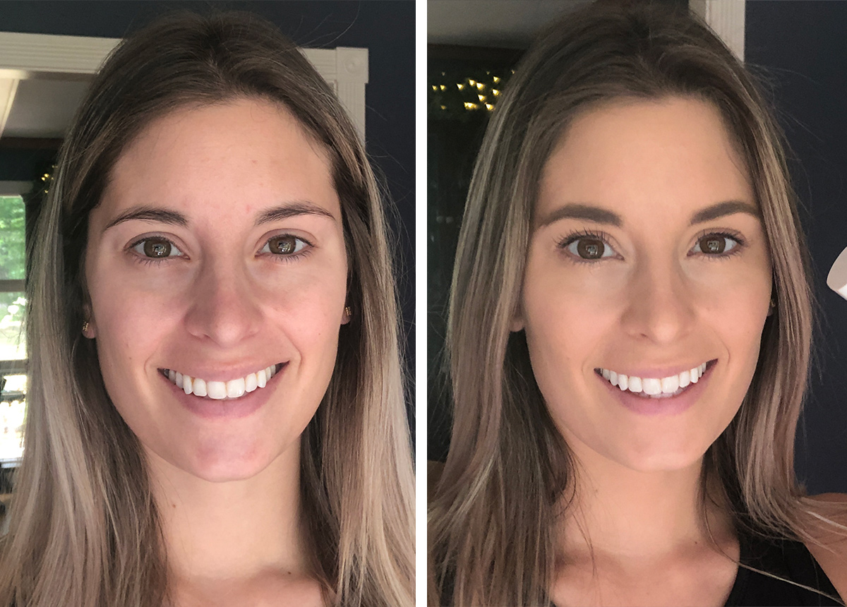 Before and after using Fenty Pro Filt'r foundation