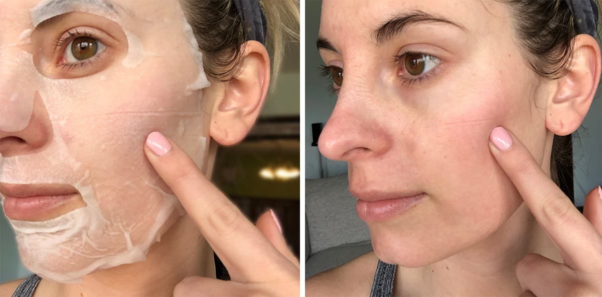 before and after of wearing a sheet mask and resulting in a line in skin