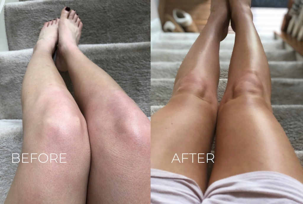before and after of pale vs tan legs