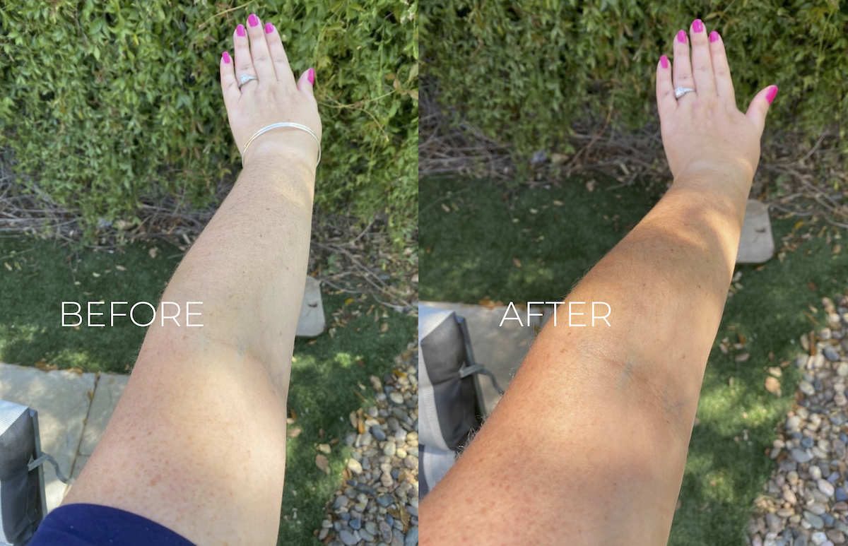 before and after with arm and self tanner