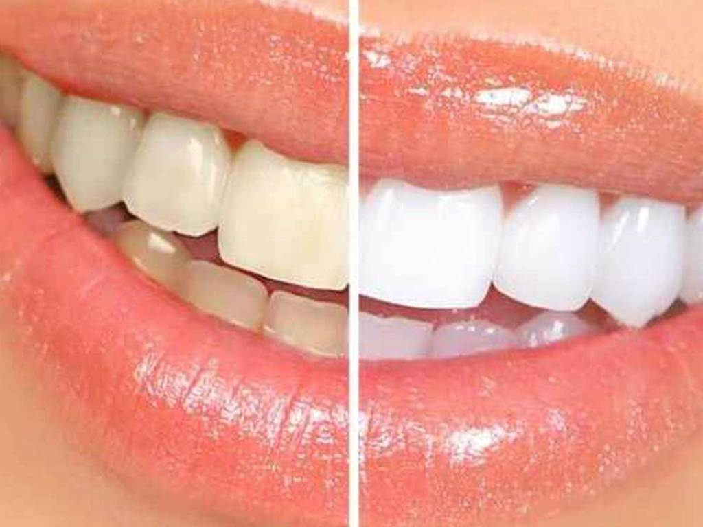 teeth before and after of whitening strips