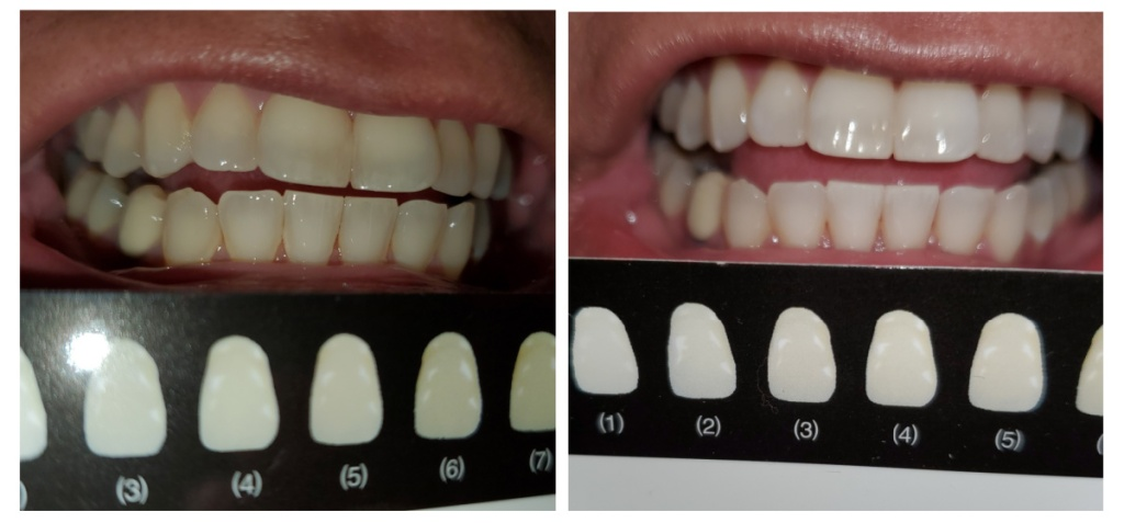Fairywill Teeth Whitening Strips Before and After