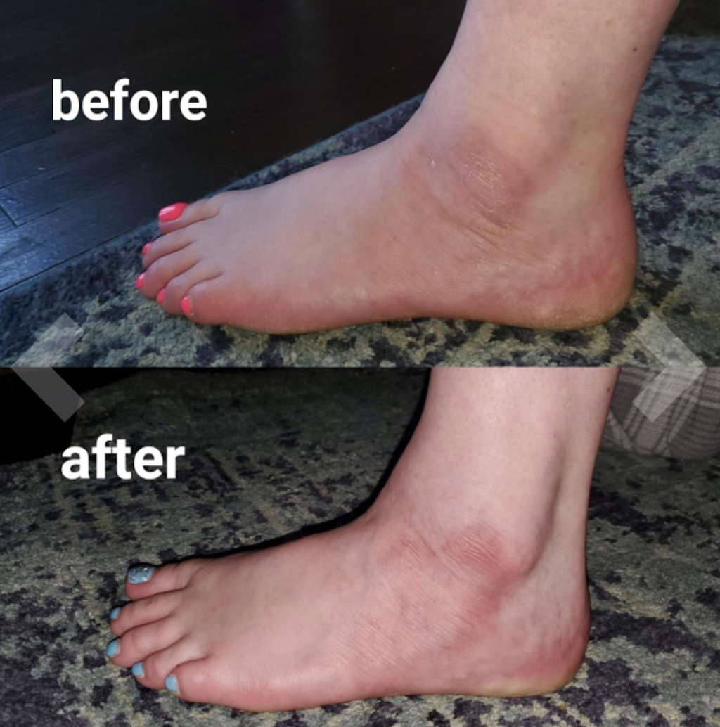 before and after of dry winter cracked skin feet