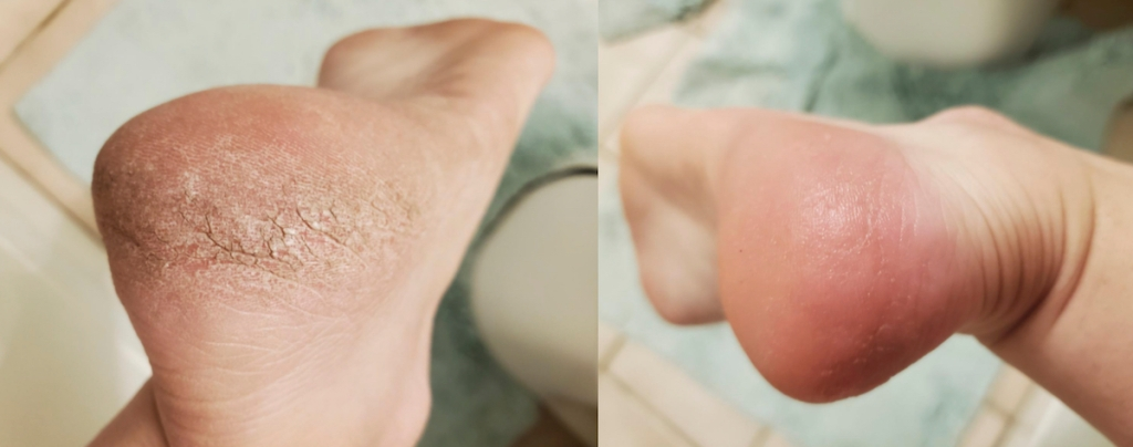 before and after of dry cracked feet dry feet remedies
